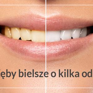 Urządzenie do wybielania zębów – czy działa?